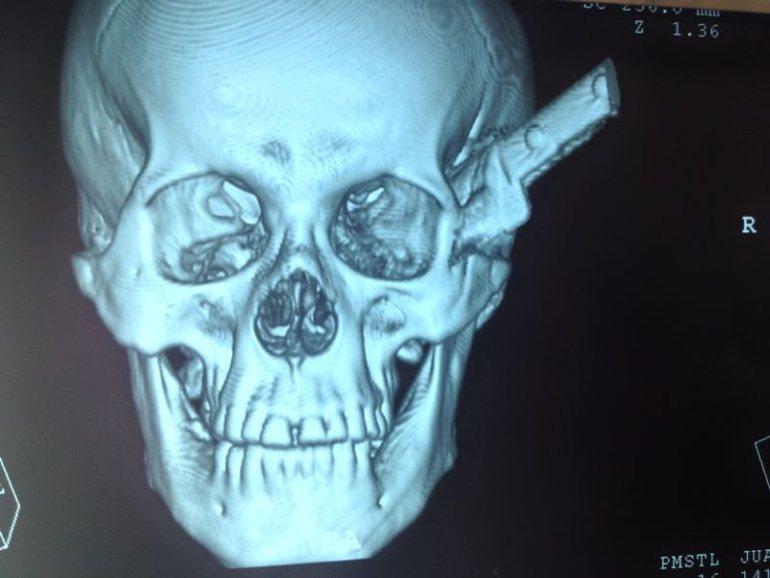Man Survives Knife Stuck in Head